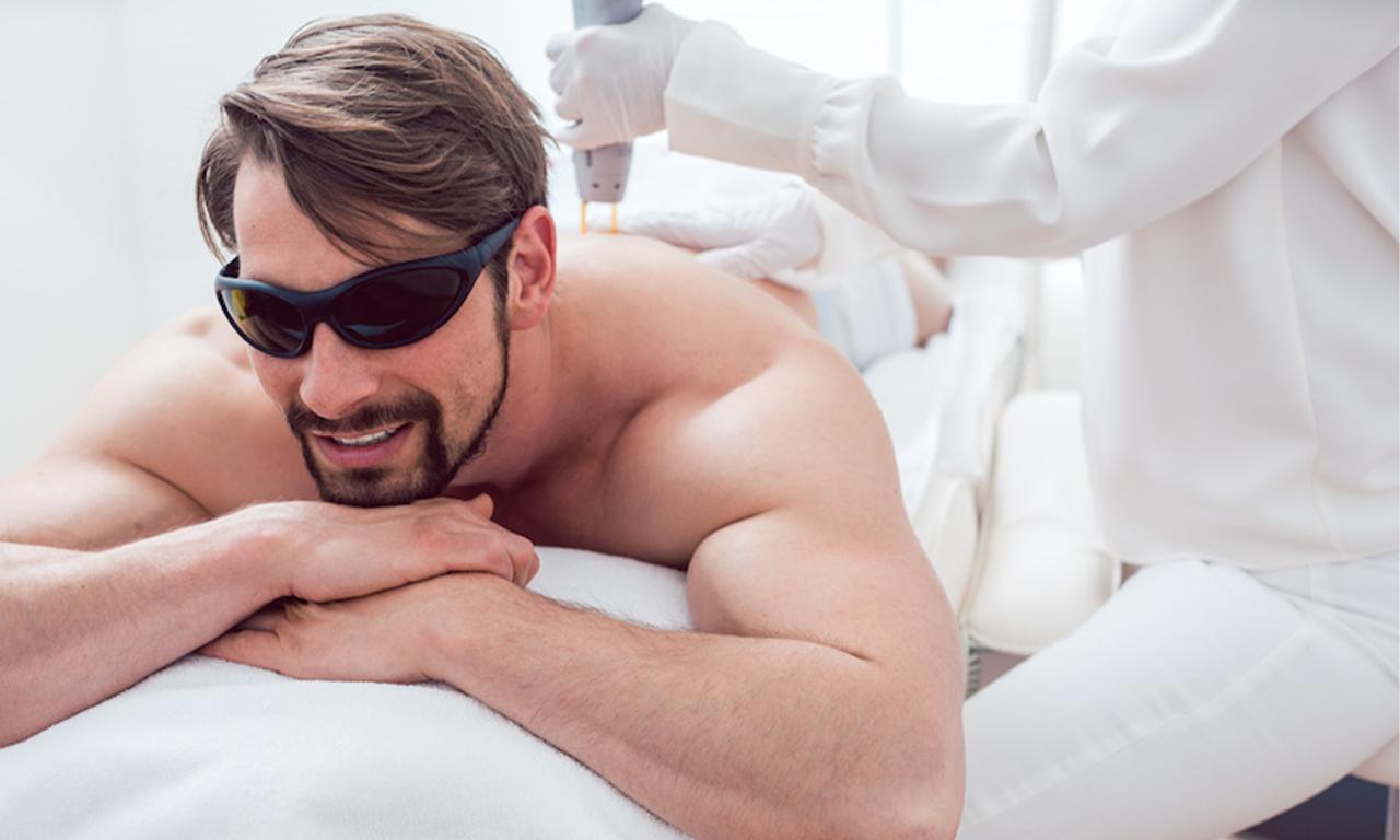 Laserbehandlung zur Haarentfernung