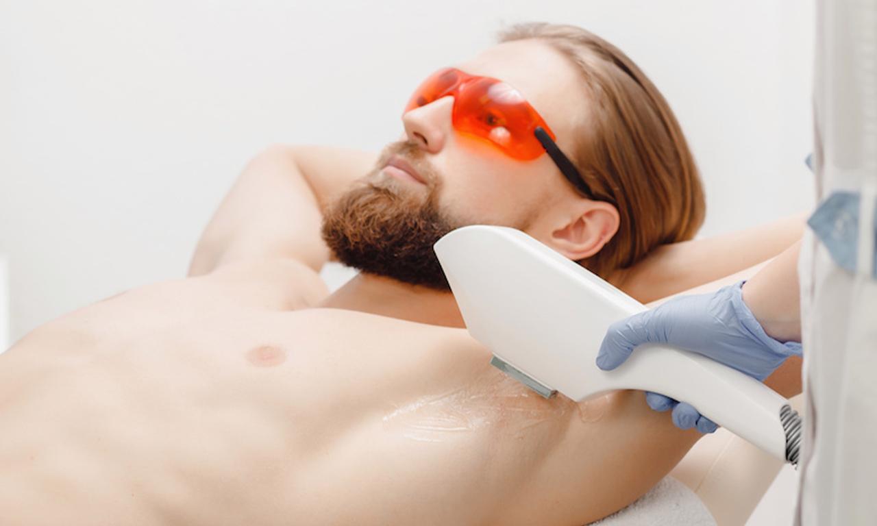 Sanfte Haarentfernung mit dem Laser
